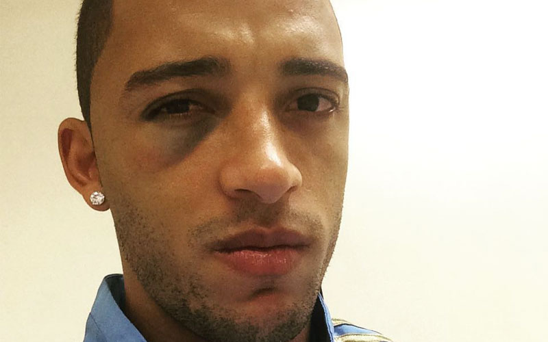 Vitor Hugo do Palmeiras sofreu concussão cerebral e disse que está bem